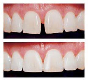 Direct Laminate Veneers Ryde Dental Care